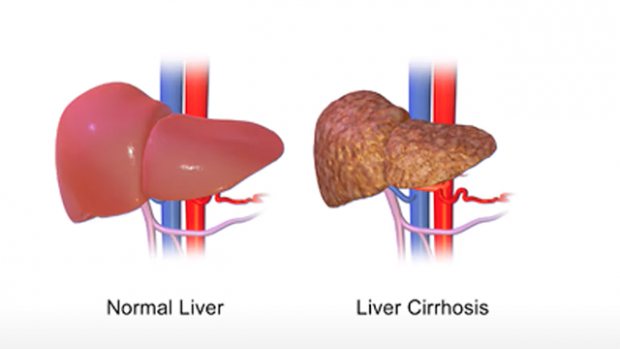 This is a stylized drawing of a healthy liver on the left side and a liver with cirrhosis on the right.